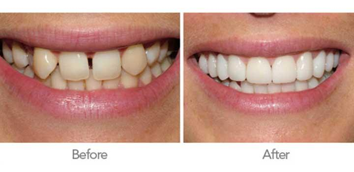 Crowns are an ideal way to restore teeth that have been broken, or have been weakened by decayor a very large filling