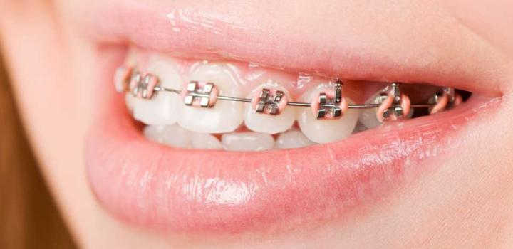Dublin orthodontics
