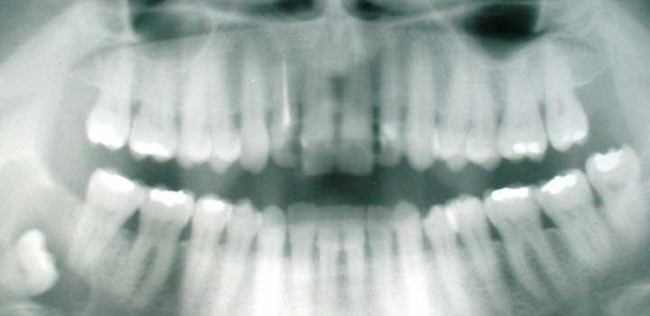 We Offer a wide range of Dental X-ray services
