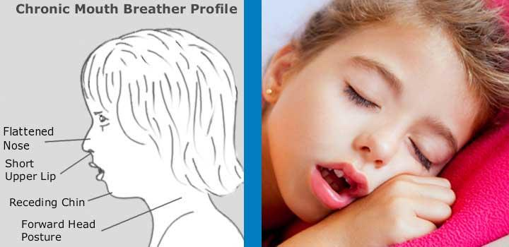 Often the most obvious symptom of incorrect oral posture involves the muscles of the face