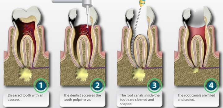 Root canal treatment is used to save teeth which would otherwise need to be removed