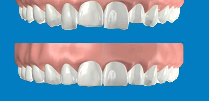 Tooth reshaping and contouring, is commonly used to alter the length, shape or position of your teeth