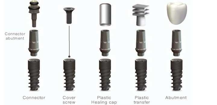 Dental implants are the best long-term solution for missing teeth