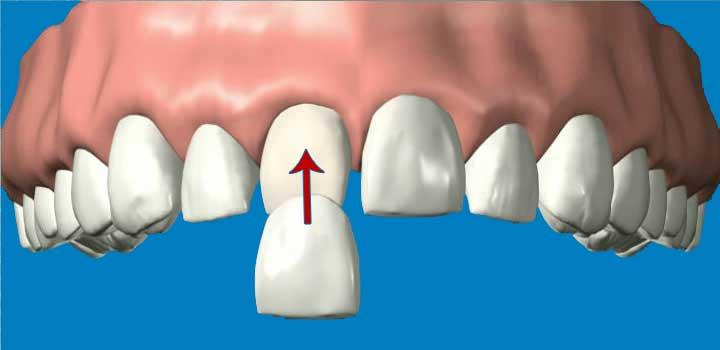 A veneer is a thin layer of porcelain made to fit over the front surface of a tooth