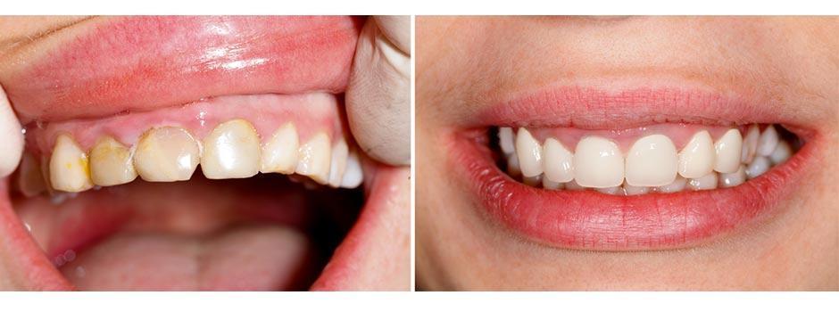 Cosmetic Treatments - Veneers