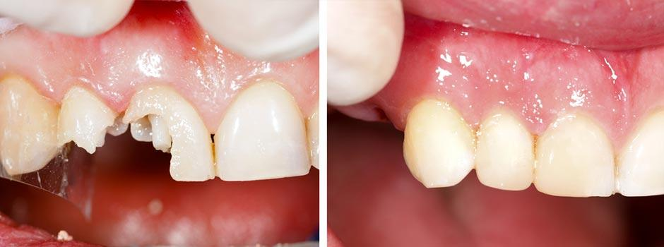 Restorative Treatments - Fillings